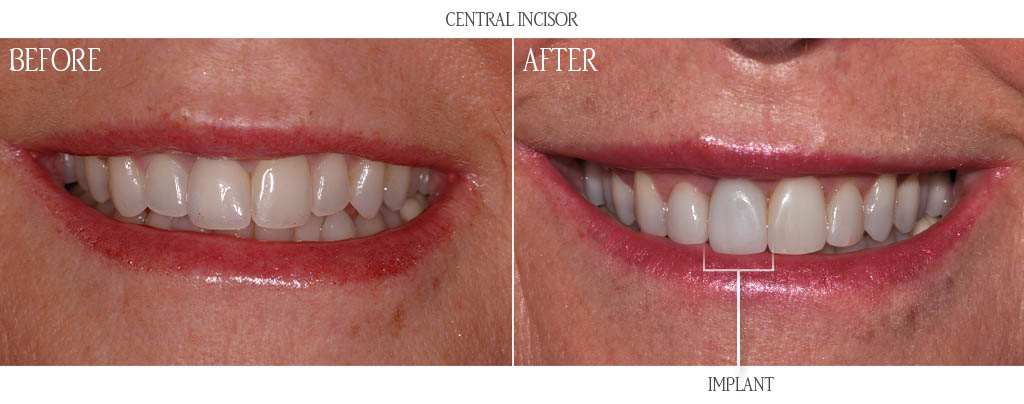 Before And After Gallery Asird American Society Of Implant And Reconstructive Dentistry